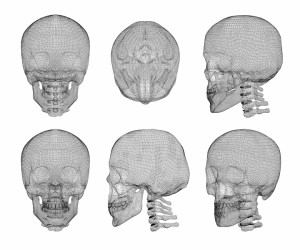 10325996-skull-and-cervical-vertebrae